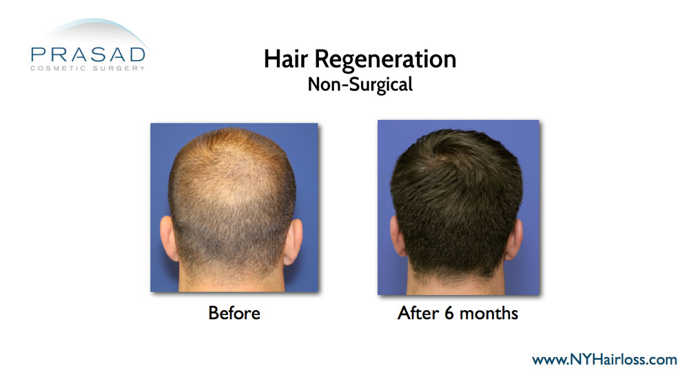 before and after hair transplant alternative treatment