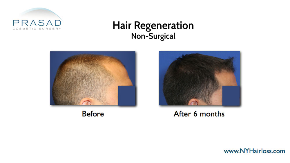 hair loss treatment for men before and after