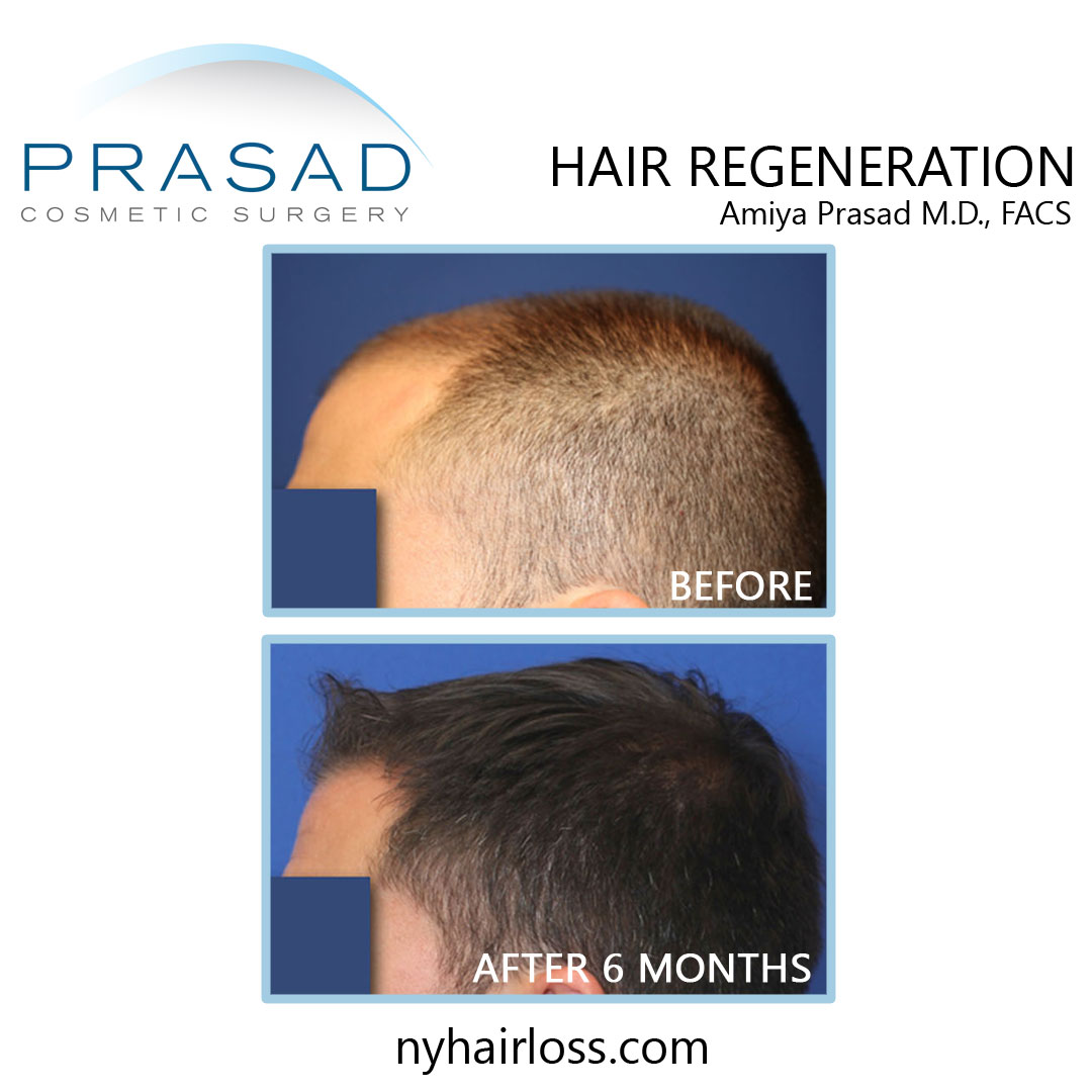 before and after hair loss treatment for men