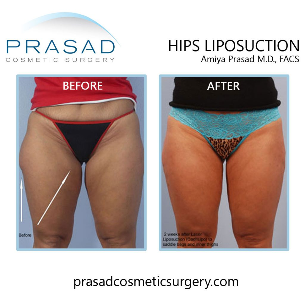 Hips liposuction before and after