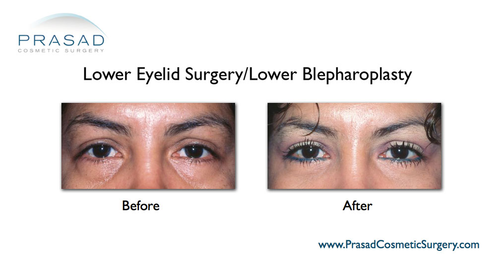 lower eyelid plastic surgery before after