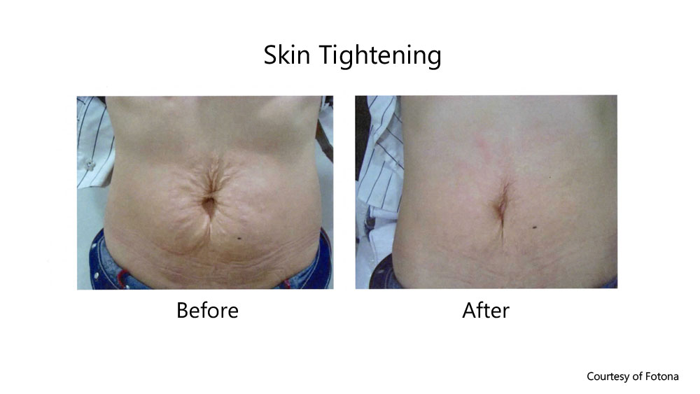 Stretch marks from post-pregnancy before and after laser skin tightening
