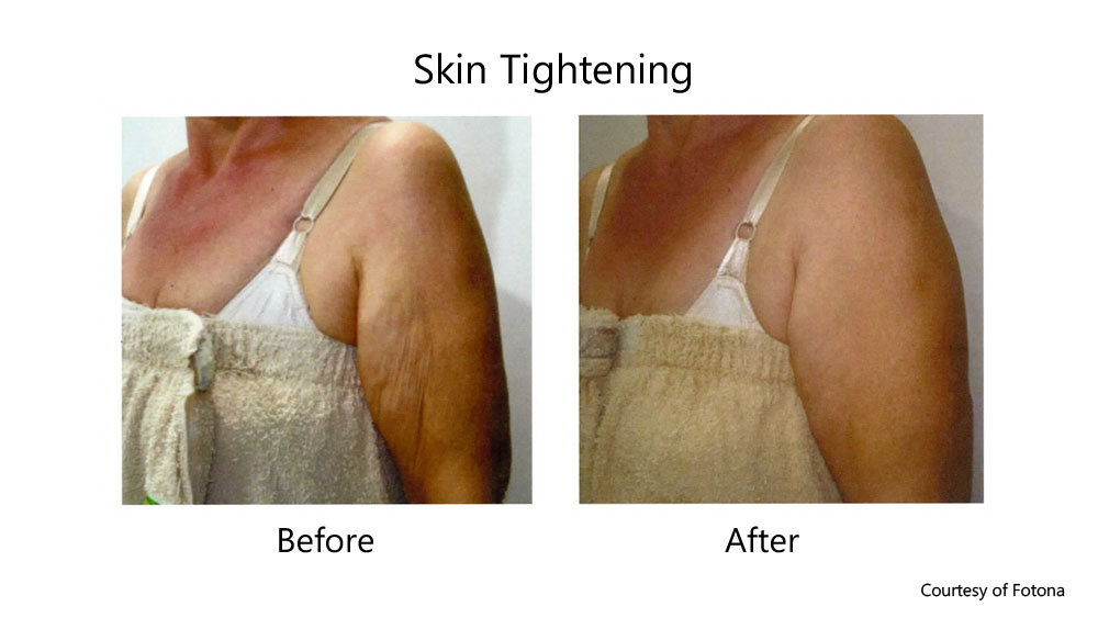 skin tightening arms before and after