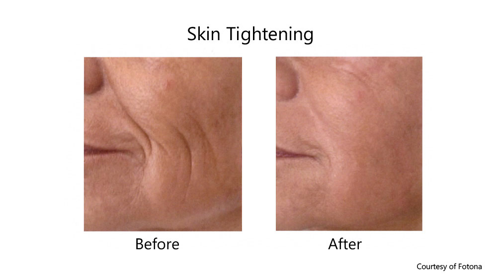 Non-ablative laser skin tightening before and after