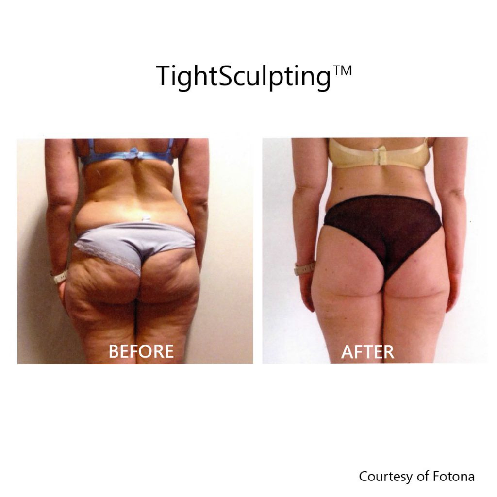 Cellulite and fat reduction before and after
