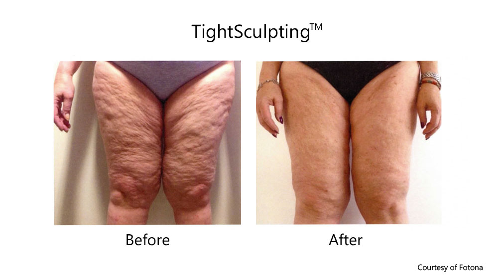 Skin Tightening Legs before and after