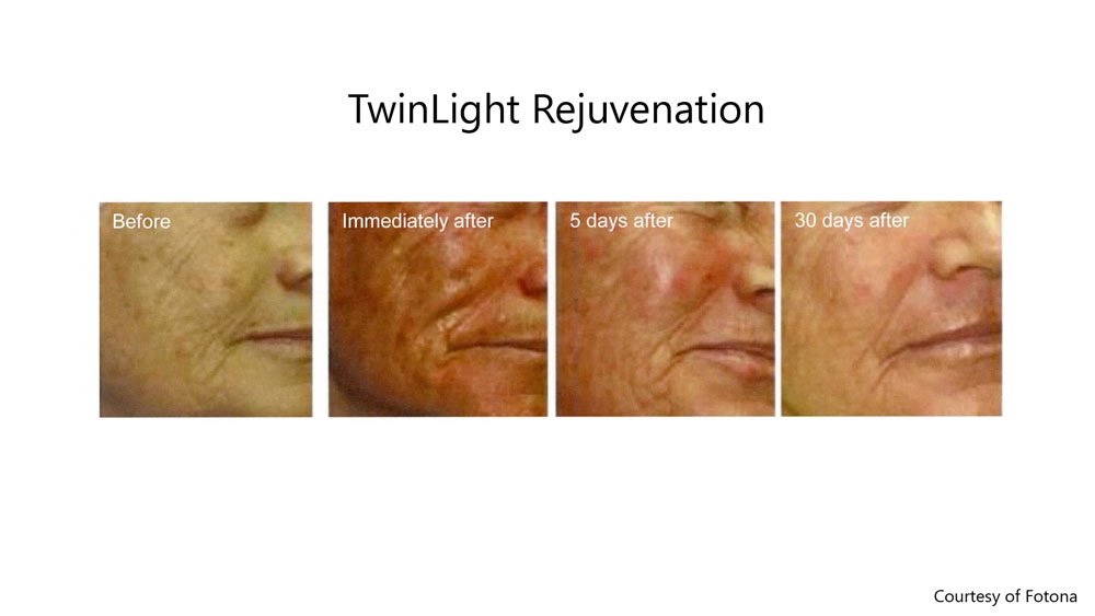 Fully ablative laser skin tightening before, immediately after and 30 days after results