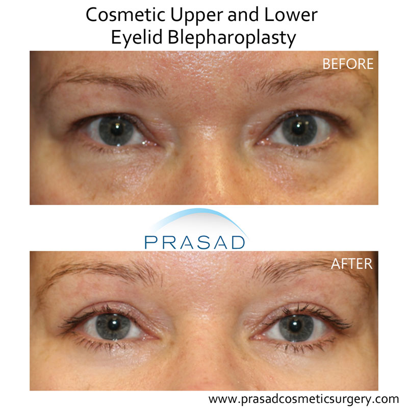 upper and lower eyelid blepharoplasty before and after