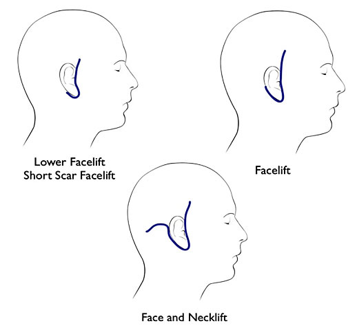 different kinds of facelift and necklift incision illustration