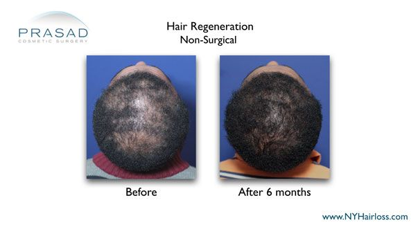 non-surgical hair loss treatment for females