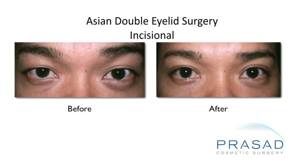 asian eye surgery-Incisional procedure