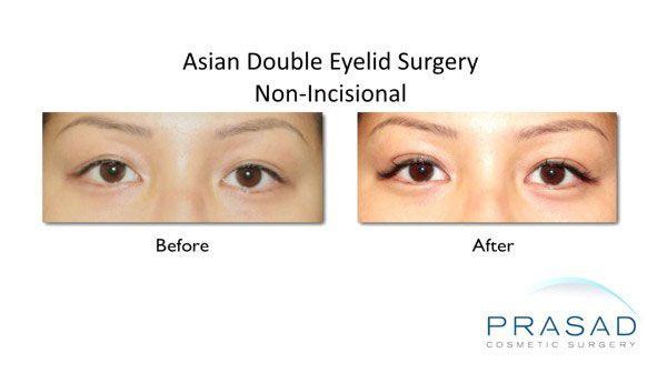 asian blepharoplasty-Surgery method