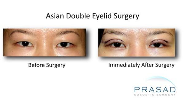 korean eyelid surgery-After procedure