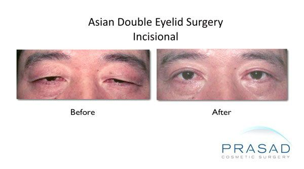 Before and after double eyelid surgery male performed at Prasad Cosmetic Surgery NYC