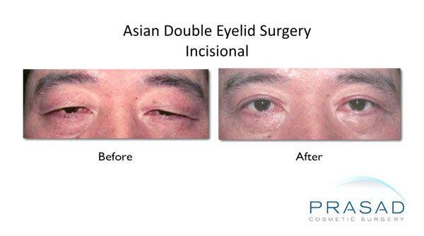 asian double eyelid-Male