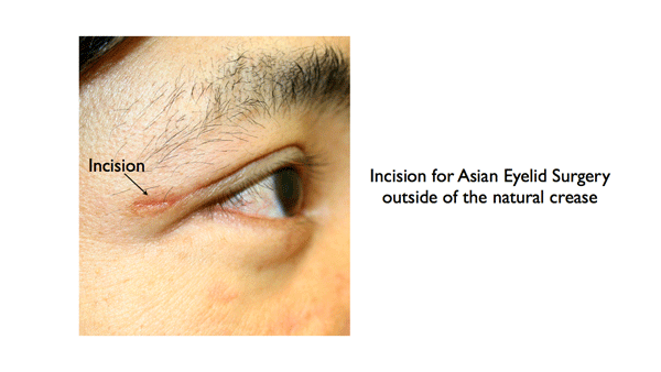 Incision for Asian Eyelid Surgery outside of the natural crease illustration