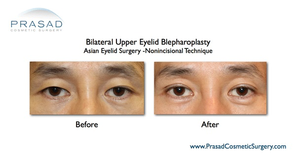 double eyelid surgery-Male