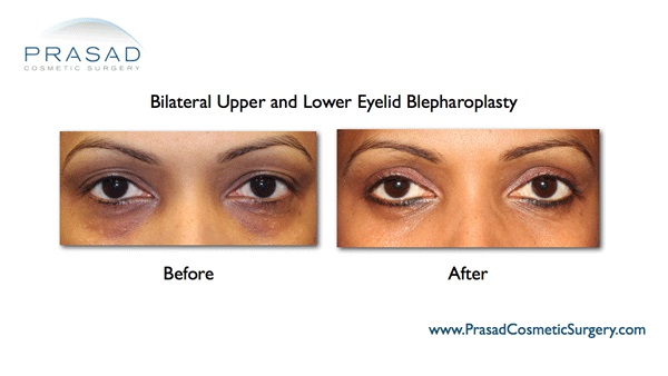 Bags under eyes Surgery