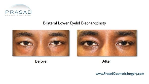 Blepharoplasty African American NYC