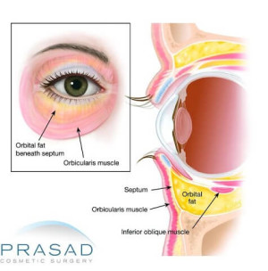 Eyelid Surgery | Upper Eyelid Surgery Procedure and ...