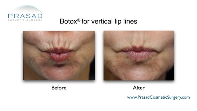 before and after using Botox® to reduce vertical lip lines