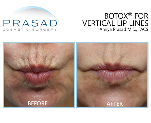 Vertical lip lines before and after Botox