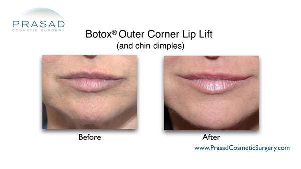 before and after botox lip lift