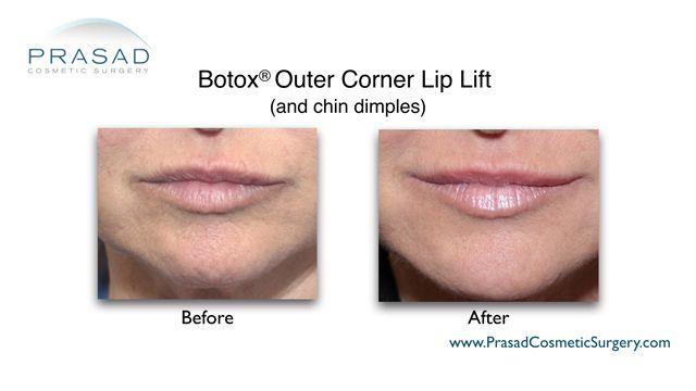 Botox® Lip Lift by Dr. Amiya Prasad