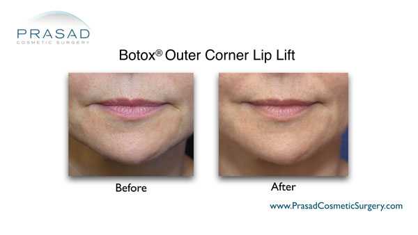 before and after botox lip lift female