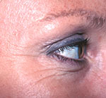 Botox/Dysprort Before