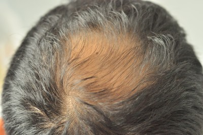 Male head crown with hair loss