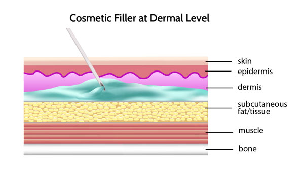 cosmetic filler at the dermal level can migrate and look heavy