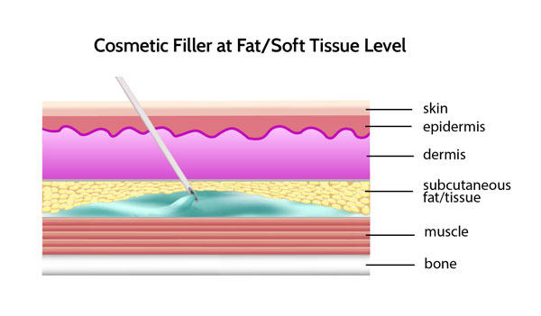 cosmetic filler placed at fat or soft tissue level