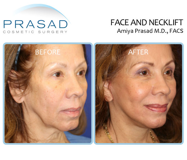 Deep plane face and neck lift before and after