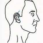 Diagram of short scar facelift incision