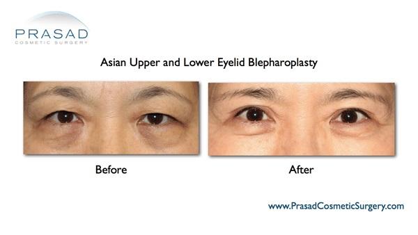 Double eyelid surgery Asian NY