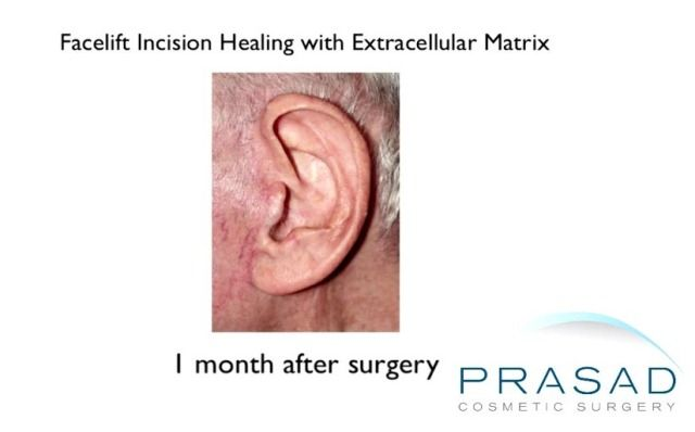 facelift incision healing with ECM 1 month after surgery