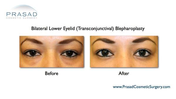 Eye bag surgery woman Dr Prasad