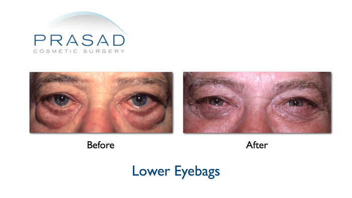 Eye bags Before and After older