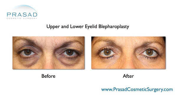 Upper Eye Lift Surgery Before And After Photos Prasad