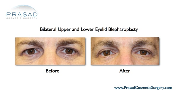 Before and after eyelift surgery recovery, male patient
