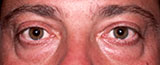 before eyebags surgery