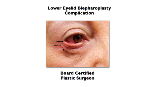 lower eyelid blepharoplasty complication done somewhere else