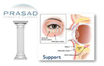 eyelid support