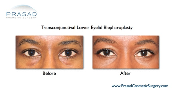 Eyelid Surgery African American patient
