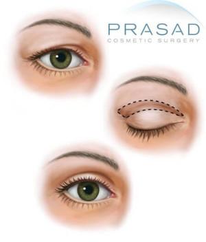 Upper eyelid blepharoplasty illustration