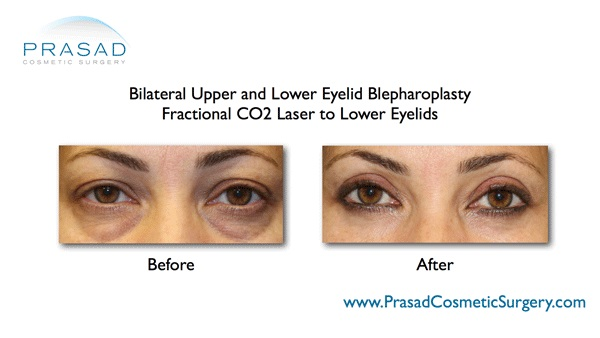 recovery after upper and lower eyelid surgery