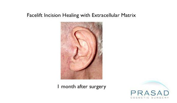 1 month after using Acellular matrix