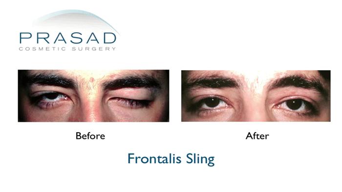 Frontalis Sling Adult-Drooping eyelid