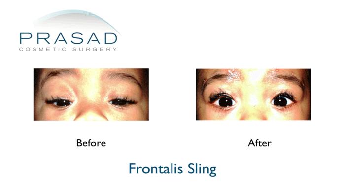 Eyelid ptosis-Frontalis Sling Child